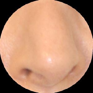 Nez dévié