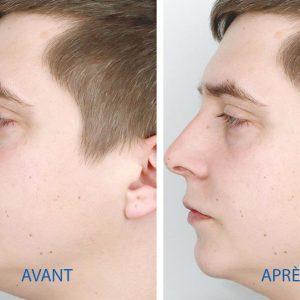 Opération en profiloplastie sur Montpellier