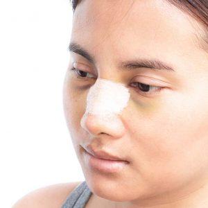 Chirurgie du nez à la clinique St Roch